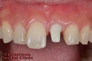 前歯部の審美インプラント治療・治療途中