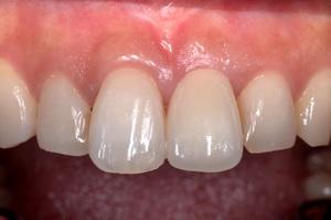 前歯部の審美インプラント治療・治療後