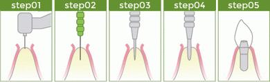 OAM式インプラント手術の違い