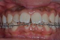 子供のⅡ期治療、成人の上下顎のマルチブラケット矯正