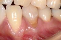 箕面市・寺嶋歯科医院、歯根露出の被覆(結合組織移植術)
