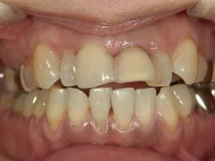 金属アレルギー患者にジルコニアを使用した全顎的審美歯科治療例
