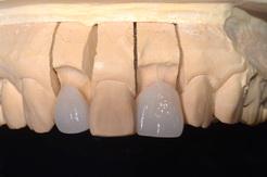 ラミネートベニアで歯並びを改善した症例