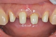 前歯部をオールセラミックスで修復した審美歯科治療症例