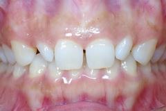 ラミネートベニアで前歯の空隙を治療した審美歯科治療症例