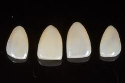 ラミネートベニアによる審美歯科治療症例