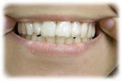 箕面市の寺嶋歯科医院、ホームホワイトニングの方法