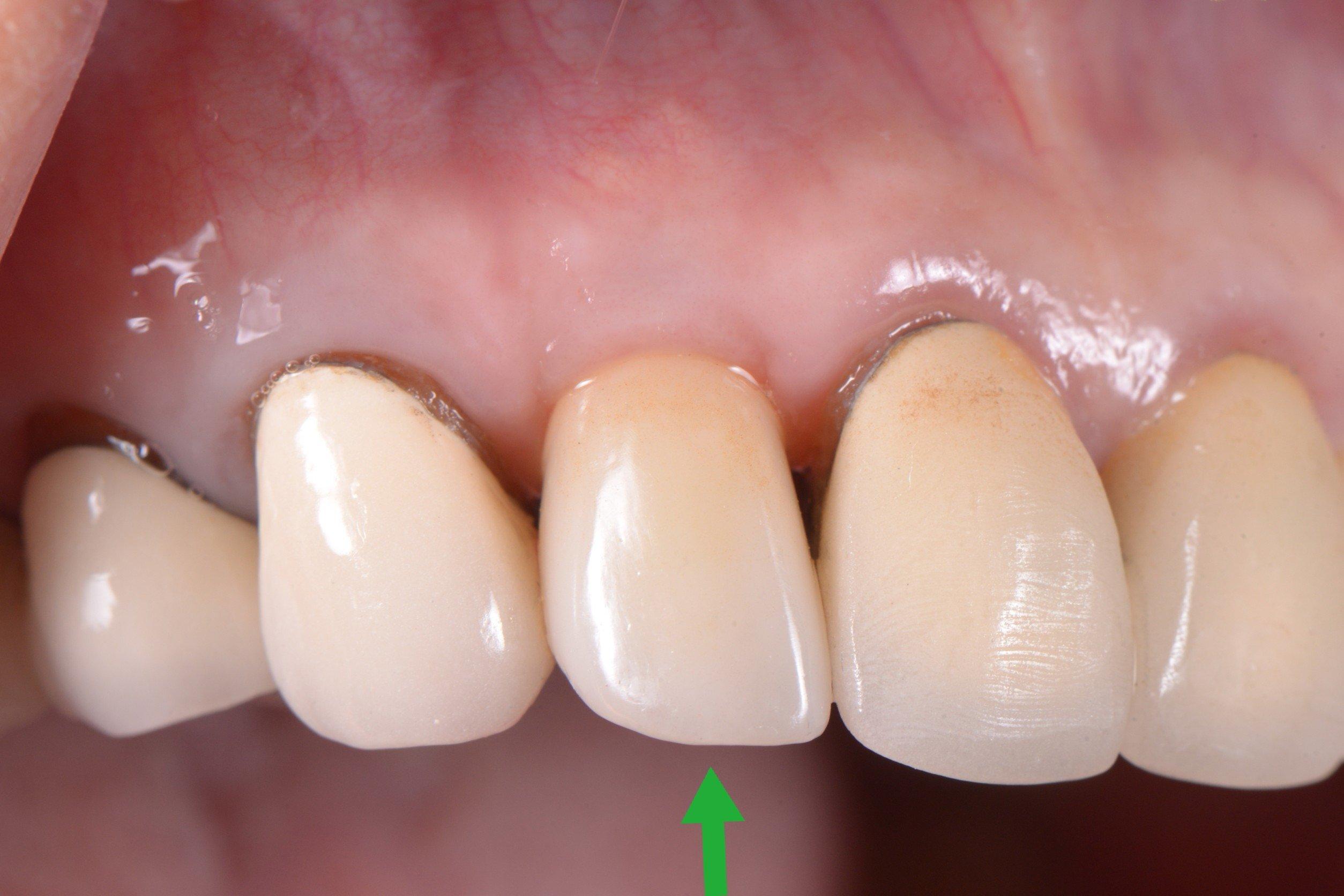 前歯のインプラント治療は簡単??