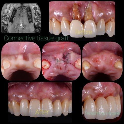 歯肉の移植手術の最前線