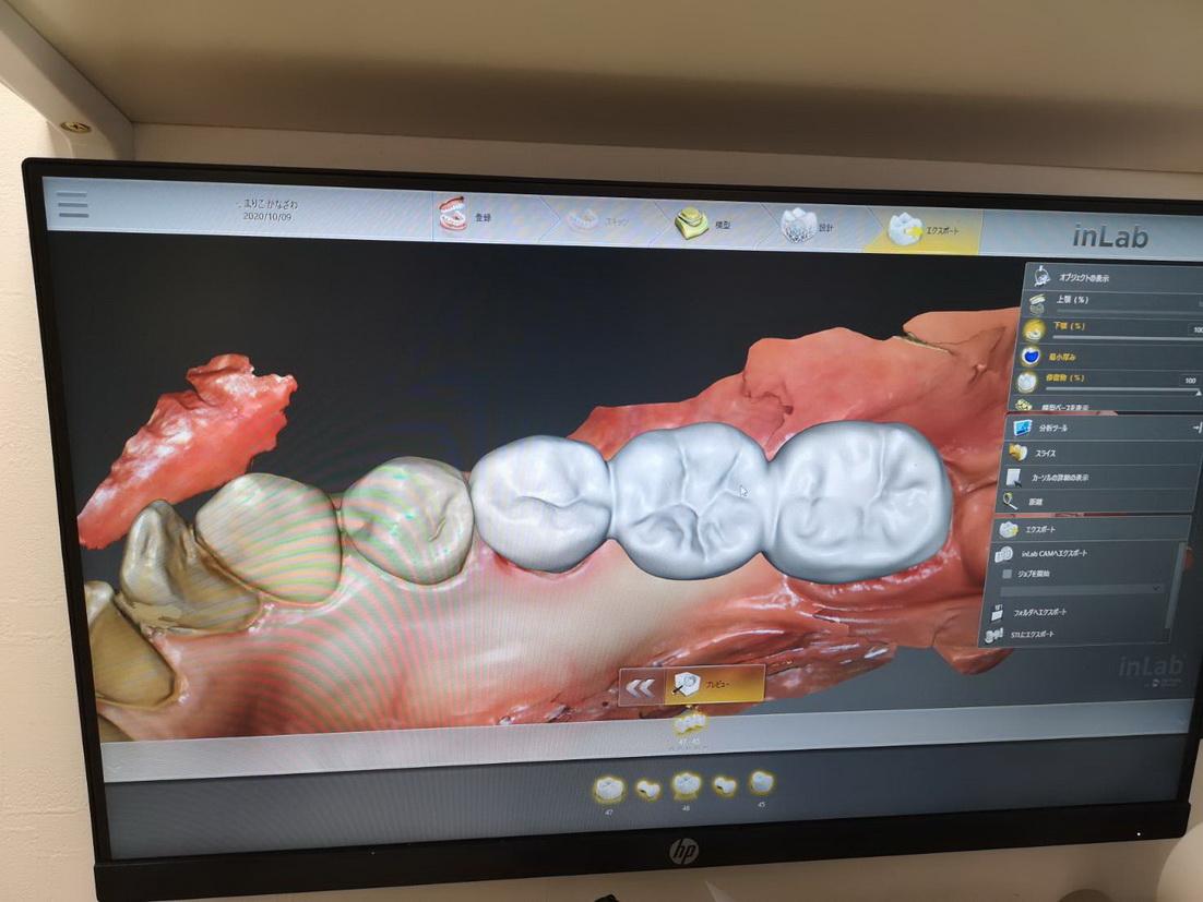 箕面市の寺嶋歯科医院のデジタル歯科