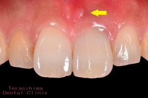 前歯部の審美インプラント治療・治療前