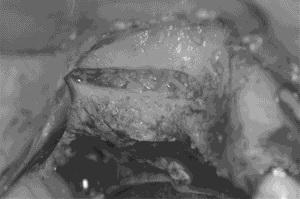 上顎洞底挙上術