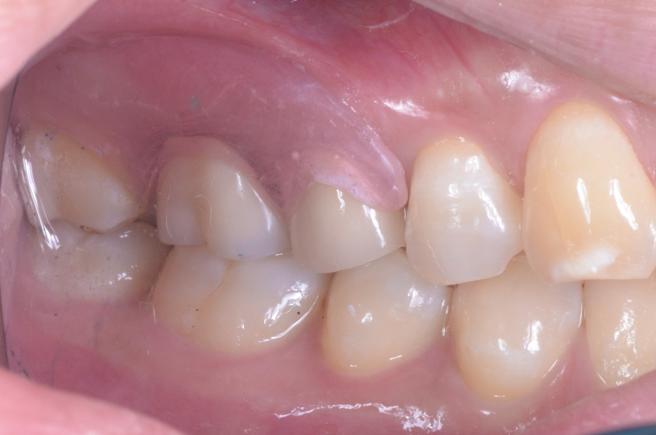 自費の入れ歯は見た目が自然