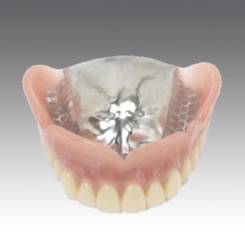 自費の入れ歯はフィットがよく、味を感じやすい