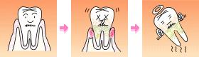 箕面市の寺嶋歯科医院、歯周病の専門的治療・歯周病再生治療・歯周形成外科