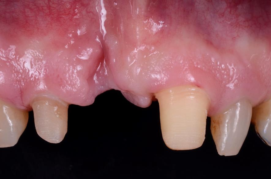 歯肉増大術