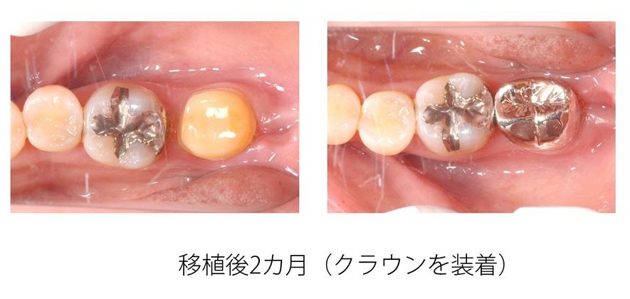 歯の移植(自家歯牙移植)