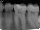 箕面市の寺今歯科医院の精密根管治療(歯内療法)
