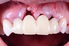 前歯部インプラント症例(抜歯即時埋入即時荷重)