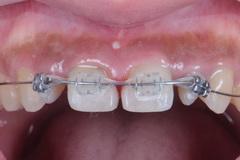 前歯部をオールセラミックスで修復したセラミック治療症例