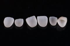 前歯をオールセラミッククラウンで治療したセラミック治療症例