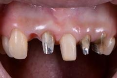 矯正治療と外科治療を併用して破折した歯を保存した治療症例