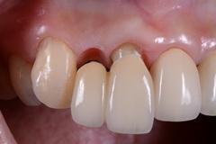 歯周外科処置とジルコニアクラウン&べニア症例