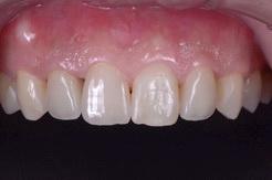 ジルコニアセラミックスで修復した審美歯科症例