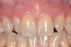 矮小歯をラミネートベニアで修復したセラミック治療症例