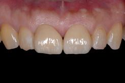 正中理解をラミネートベニアで修復した審美歯科治療症例