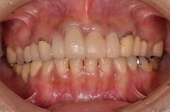 歯肉整形手術を併用して、審美的な歯肉ライン創り上げた審美歯科治療症例