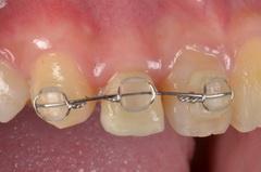 矯正治療と外科治を併用して破折した歯を保存した審美歯科治療症例
