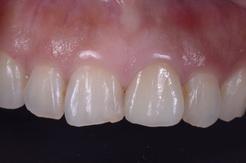 オールセラミックスを用いた審美歯科治療症例