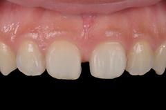 セラミックラミネートベニアで正中離開を治療した審美歯科治療症例