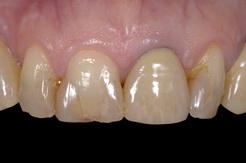 オールセラミックスとラミネートベニアを使用した前歯6本の審美修復