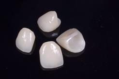 ジルコニアセラミッククラウンを用いた審美歯科治療
