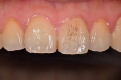 ラミネートベニアによる審美歯科治療