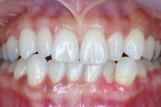 歯肉の黒ずみの除去(レーザーピーリング)