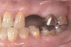 金属アレルギー患者にジルコニアを使用した全顎的セラミック治療例