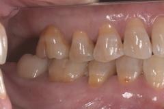 金属アレルギー患者にジルコニアを使用した全顎的セラミック治療治療例