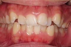 矯正治療と外科治を併用して破折した歯を保存した治療症例