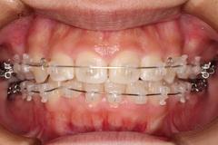 矯正治療と外科治を併用して破折した歯を保存した療症例
