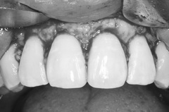 矯正治療と外科治を併用して破折した歯を保存し症例