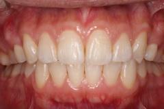 矯正治療と外科治を併用して破折した歯を保存した症例