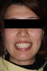 矯正治療と外科治を併用して破折した歯を保存したセラミック治療治療症例