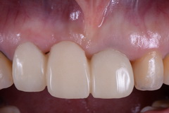 歯肉移植CTGを用いた審美治療