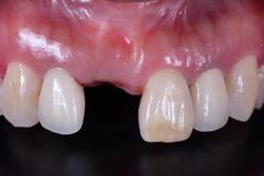前歯部をインプラントでセラミック的に治した症例