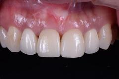 前歯部をインプラントで治した症例