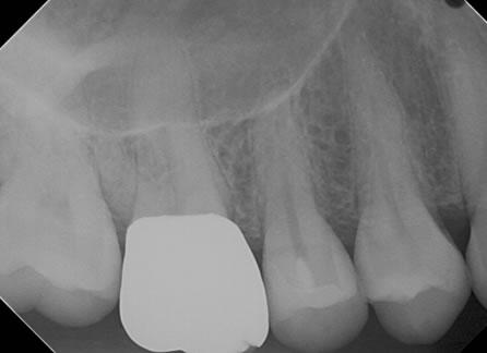 箕面市の寺嶋歯科医院の歯の神経の保存治療