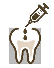 歯の神経の保存治療